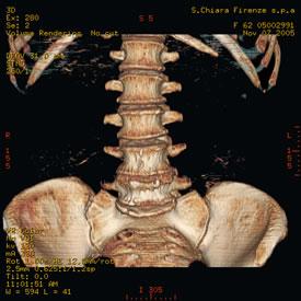 Immagine TAC - Rachide lombo-sacrale 3D