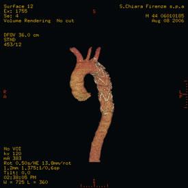 Immagine TAC - Aorta toracica 3D