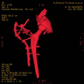 Immagine TAC - Paziente operato di protesi d'anca